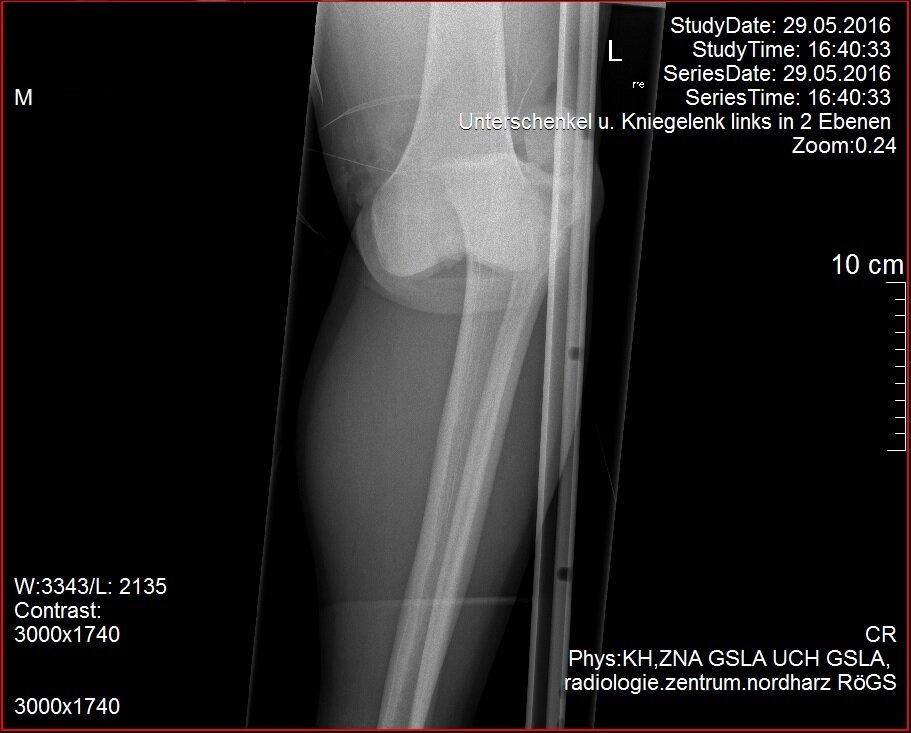 Knie Unfall 2.jpg